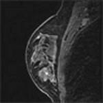 Νέες Τεχνολογίες για την έγκαιρη διάγνωση του καρκίνου του μαστού